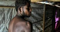In this photograph taken on August 9, 2018, Rohingya refugee Mohammad Sikander, 37, poses inside his tent in the Kutapalong refugee camp in Ukhia near Cox's Bazar./AFP