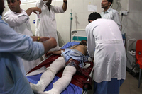 A wounded man is treated at a hospital Sunday after a car bomb and multiple gunmen attacked a prison in Jalalabad. (AP)